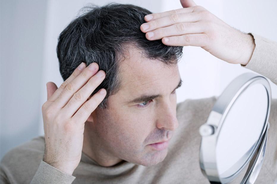 أسباب-تساقط-الشعر-عند-الرجال