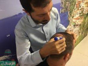 عمليات زراعة الشعر في قطر