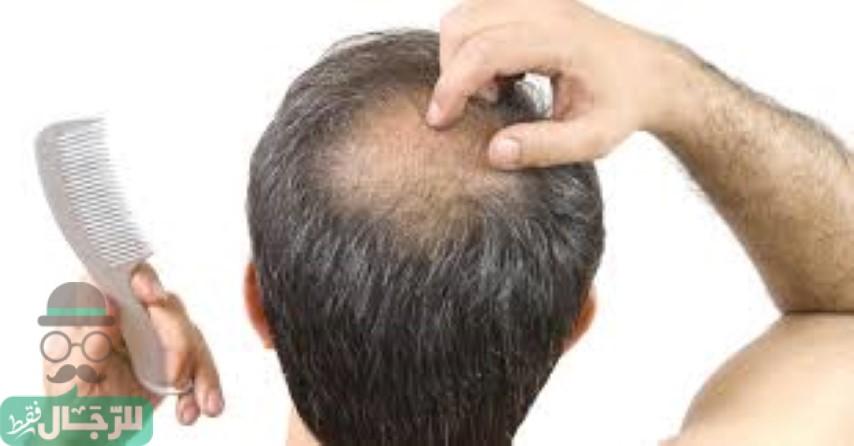زراعة الشعر فى اسطنبول
