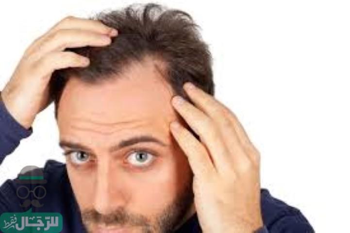 زراعة الشعر في اسطنبول