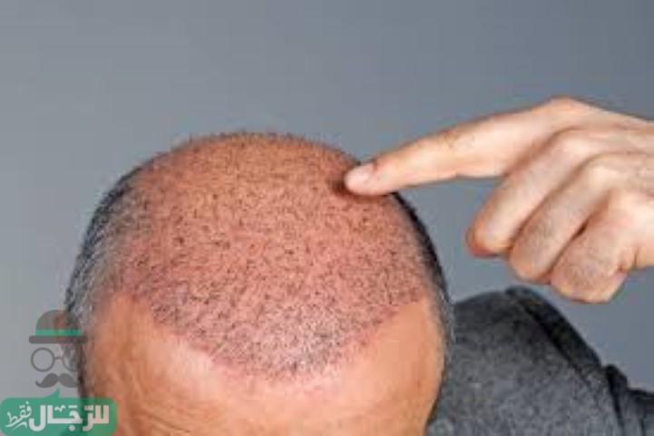 تكلفة زراعة الشعر