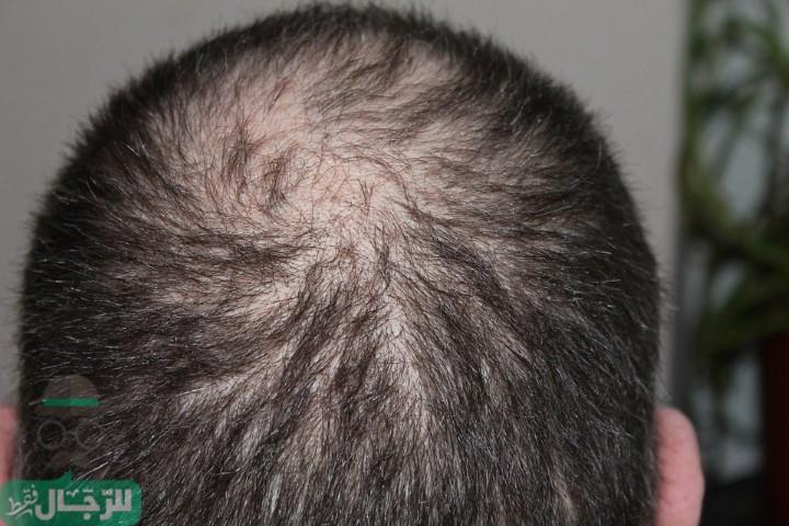 زراعة الشعر في الرياض