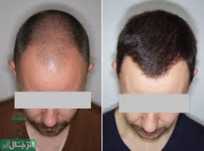 تكلفة زراعة الشعر في الكويت