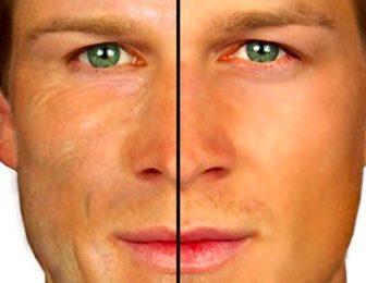 تجاعيد الوجه المبكرة .. الدليل الكامل للأسباب وطرق العلاج