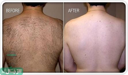 إزالة الشعر للرجال .. تعلم أسهل طرق إزالة الشعر بدون ألم في المنزل