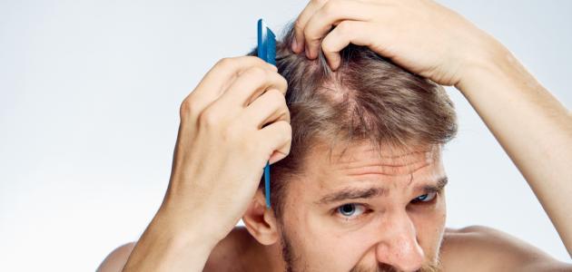 افضل كريم لمنع تساقط الشعر للرجال