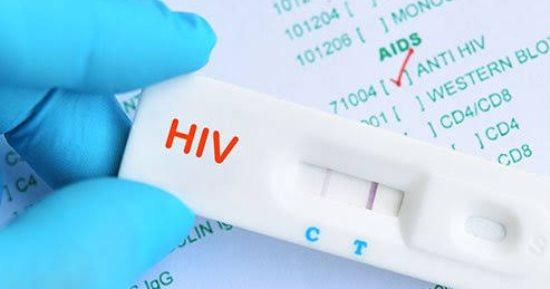 تحليل الايدز